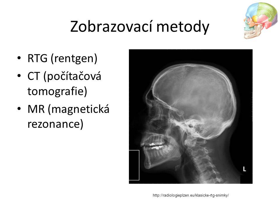 Zobrazovací metody RTG (rentgen) CT (počítačová tomografie) MR (magnetická rezonance) http://radiologieplzen.eu/klasicke-rtg-snimky/