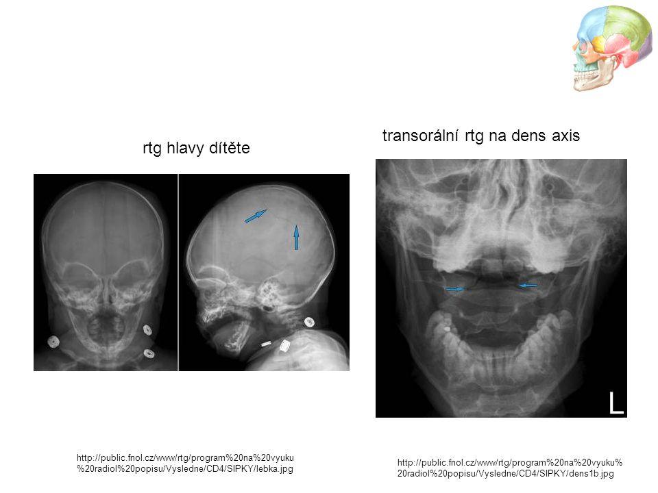 http://public.fnol.cz/www/rtg/program%20na%20vyuku% 20radiol%20popisu/Vysledne/CD4/SIPKY/dens1b.jpg transorální rtg na dens axis rtg hlavy dítěte http