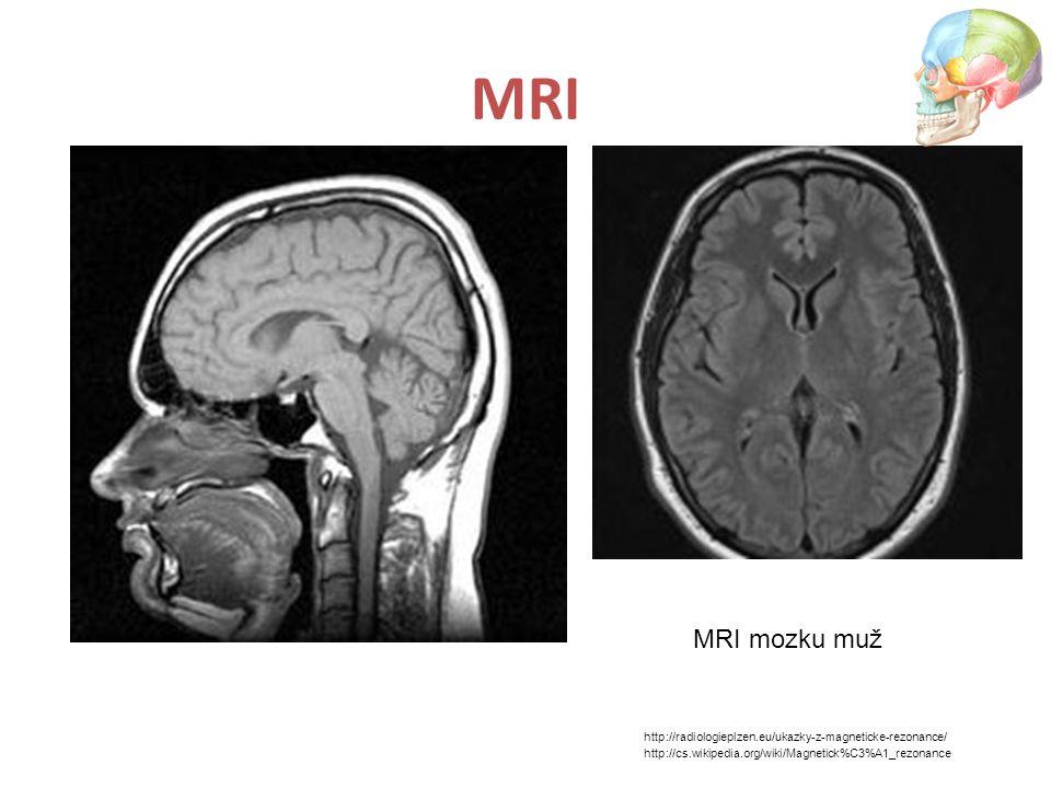 MRI MRI mozku muž http://radiologieplzen.eu/ukazky-z-magneticke-rezonance/ http://cs.wikipedia.org/wiki/Magnetick%C3%A1_rezonance