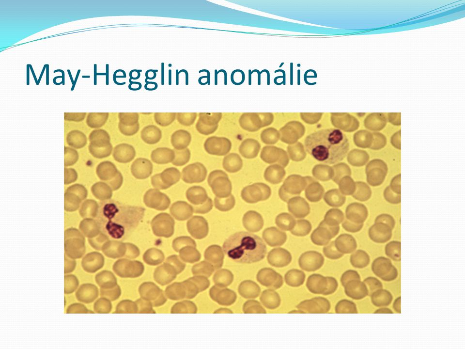 May-Hegglin anomálie