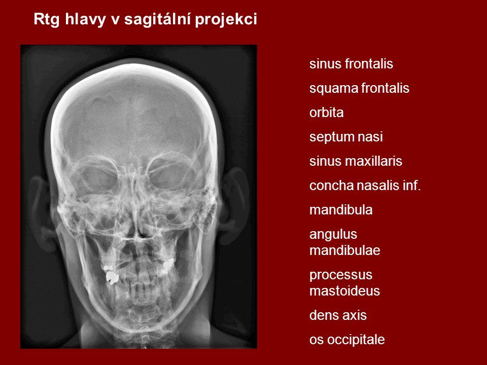 Rtg hlavy v sagitální projekci sinus frontalis squama frontalis orbita septum nasi sinus maxillaris concha nasalis inf. mandibula angulus mandibulae p