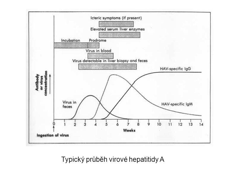 Typický průběh virové hepatitidy A