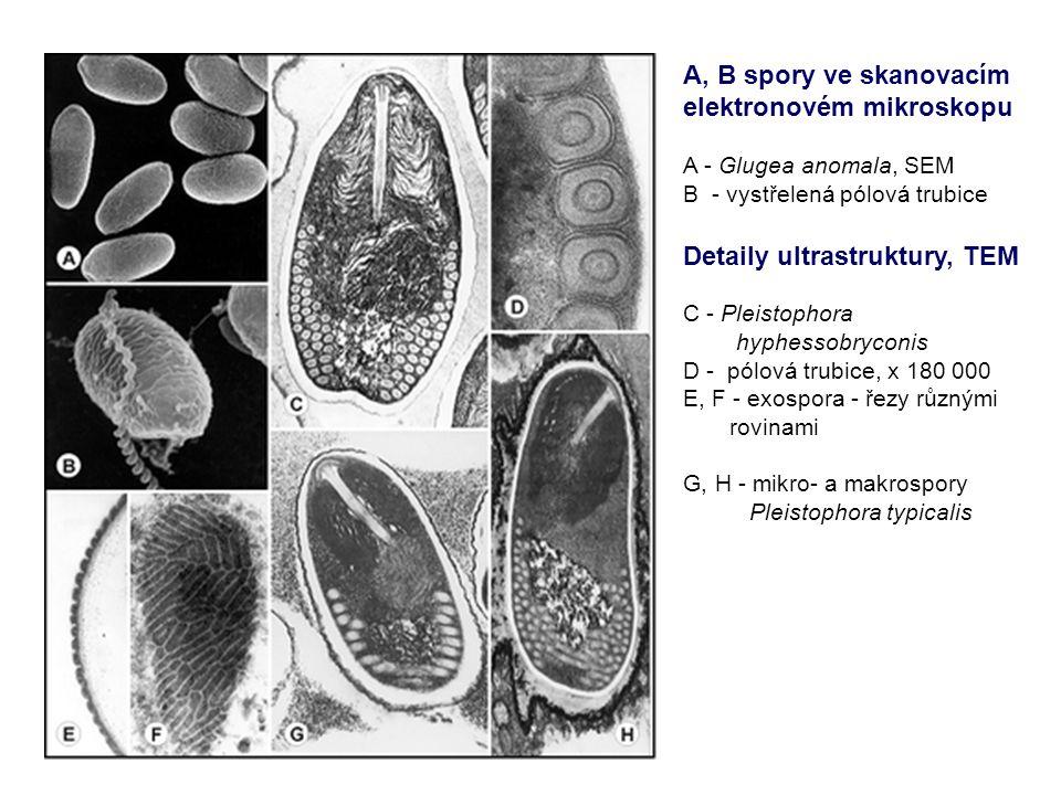 A, B spory ve skanovacím elektronovém mikroskopu A - Glugea anomala, SEM B - vystřelená pólová trubice Detaily ultrastruktury, TEM C - Pleistophora hyphessobryconis D - pólová trubice, x 180 000 E, F - exospora - řezy různými rovinami G, H - mikro- a makrospory Pleistophora typicalis