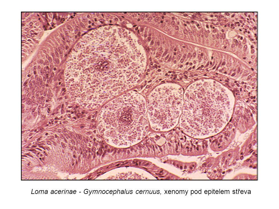 Loma acerinae - Gymnocephalus cernuus, xenomy pod epitelem střeva