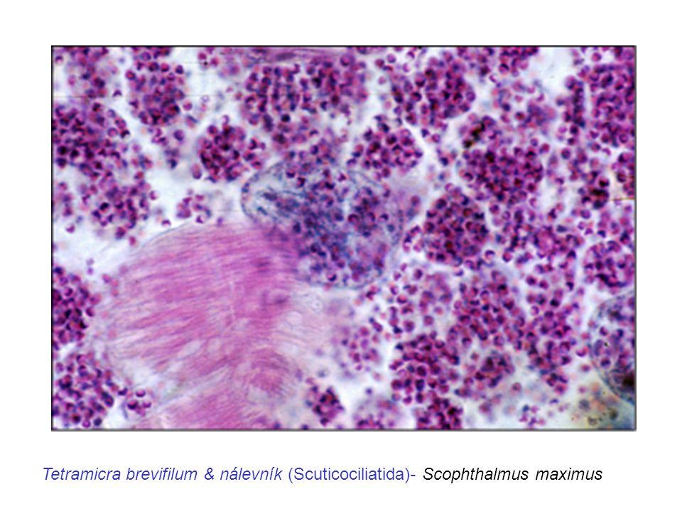 Tetramicra brevifilum & nálevník (Scuticociliatida)- Scophthalmus maximus
