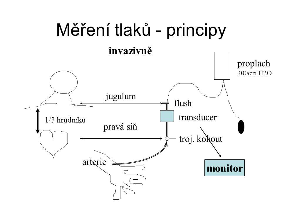 Příznaky šoku - obecně Vědomí (kvalitativní  kvantitativní) Respirační selhání (polytachybradypnoe, dyspnoe) Kardiovaskulární selhání (  MAP  CO)