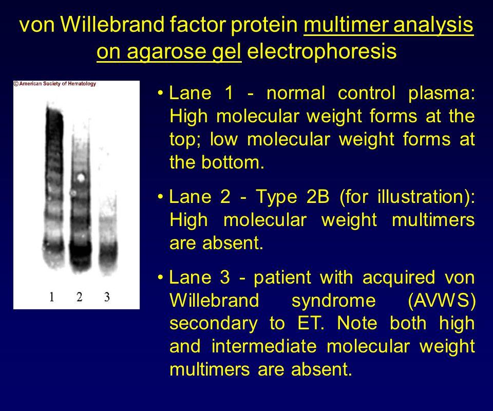 von Willebrand factor protein multimer analysis on agarose gel electrophoresis Lane 1 - normal control plasma: High molecular weight forms at the top;
