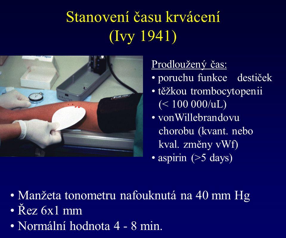 Prodloužený čas: poruchu funkce destiček těžkou trombocytopenii (< 100 000/uL) vonWillebrandovu chorobu (kvant. nebo kval. změny vWf) aspirin (>5 days