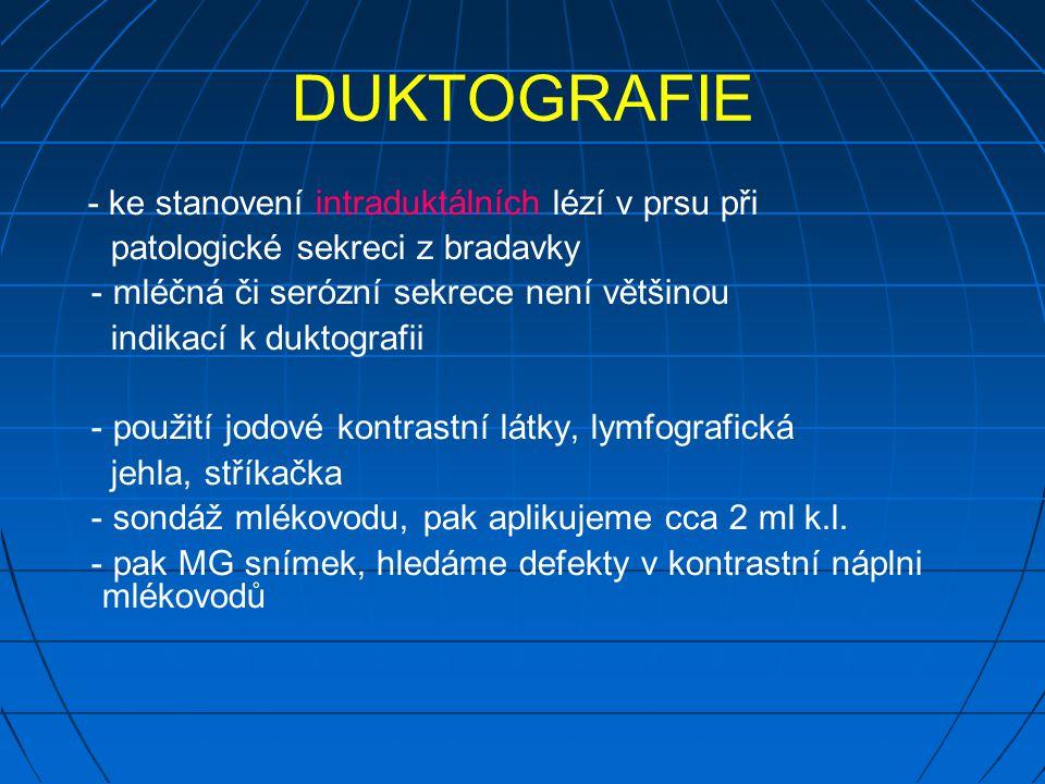 DUKTOGRAFIE - ke stanovení intraduktálních lézí v prsu při patologické sekreci z bradavky - mléčná či serózní sekrece není většinou indikací k duktografii - použití jodové kontrastní látky, lymfografická jehla, stříkačka - sondáž mlékovodu, pak aplikujeme cca 2 ml k.l.
