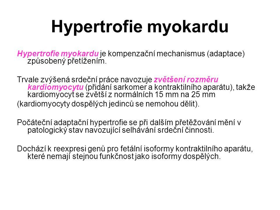Hypertrofie myokardu Hypertrofie myokardu je kompenzační mechanismus (adaptace) způsobený přetížením. Trvale zvýšená srdeční práce navozuje zvětšení r