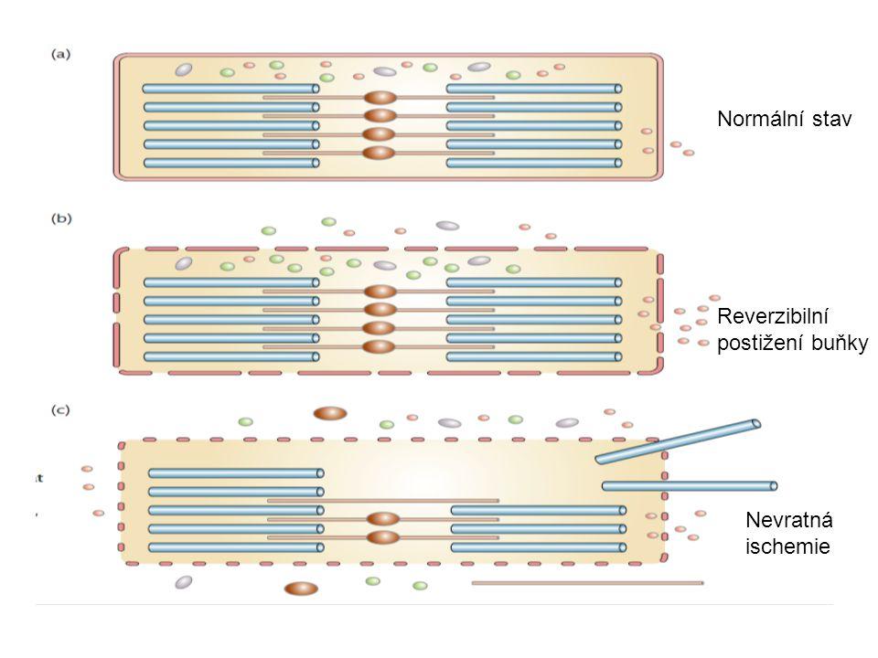 Normální stav Reverzibilní postižení buňky Nevratná ischemie