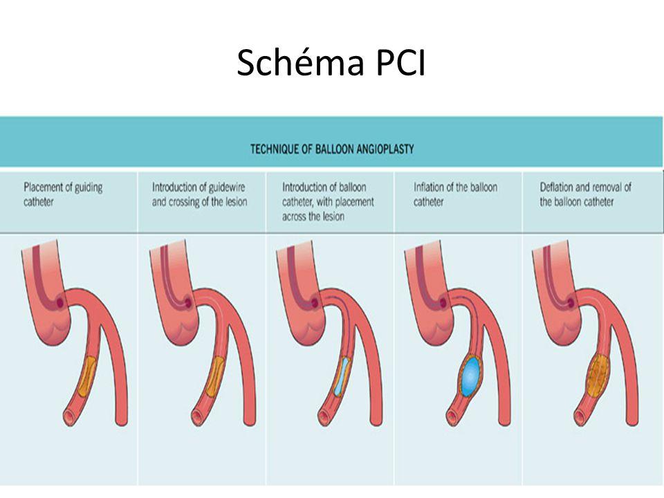 Schéma PCI