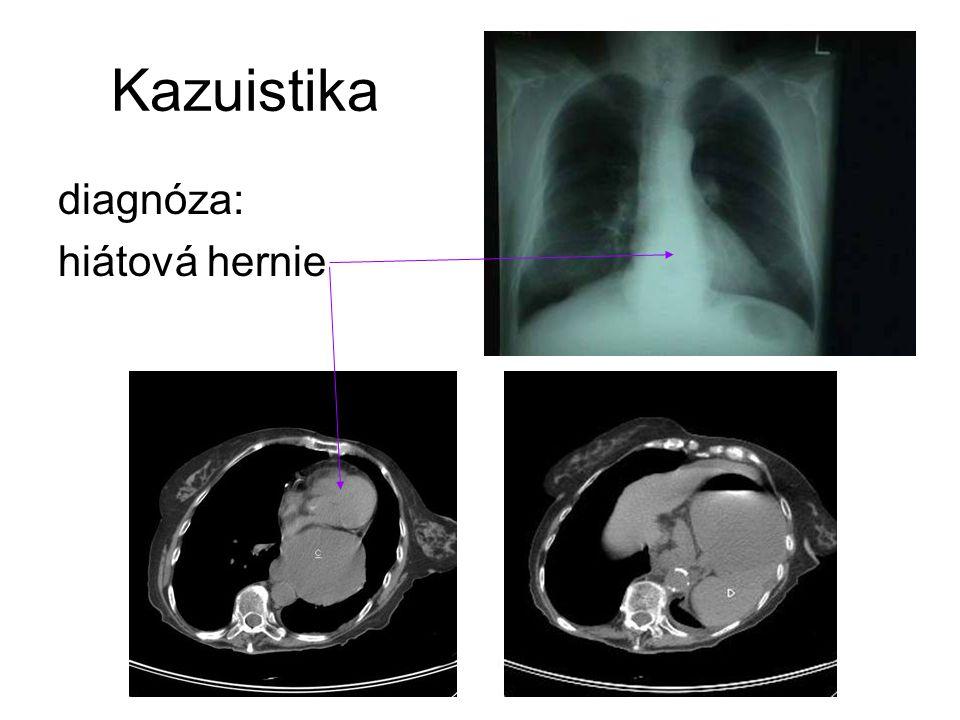 Kazuistika diagnóza: hiátová hernie