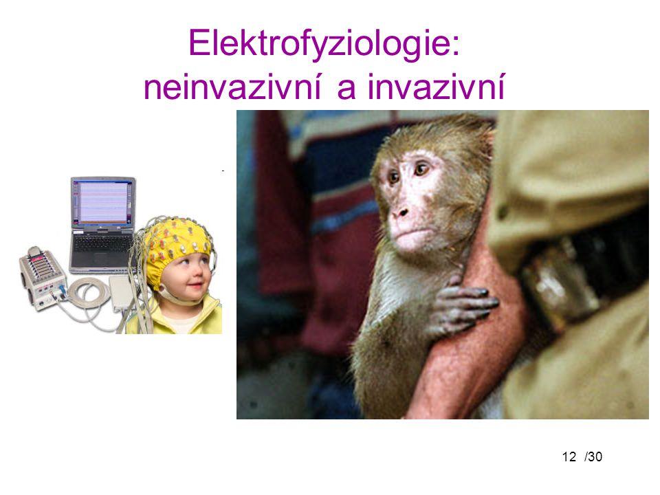/3012 Elektrofyziologie: neinvazivní a invazivní