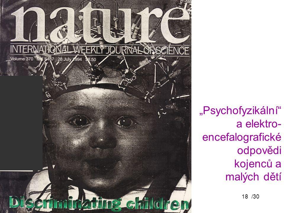 """/3018 """"Psychofyzikální"""" a elektro- encefalografické odpovědi kojenců a malých dětí"""
