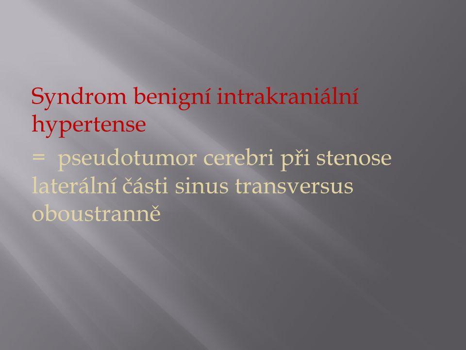 Syndrom benigní intrakraniální hypertense = pseudotumor cerebri při stenose laterální části sinus transversus oboustranně