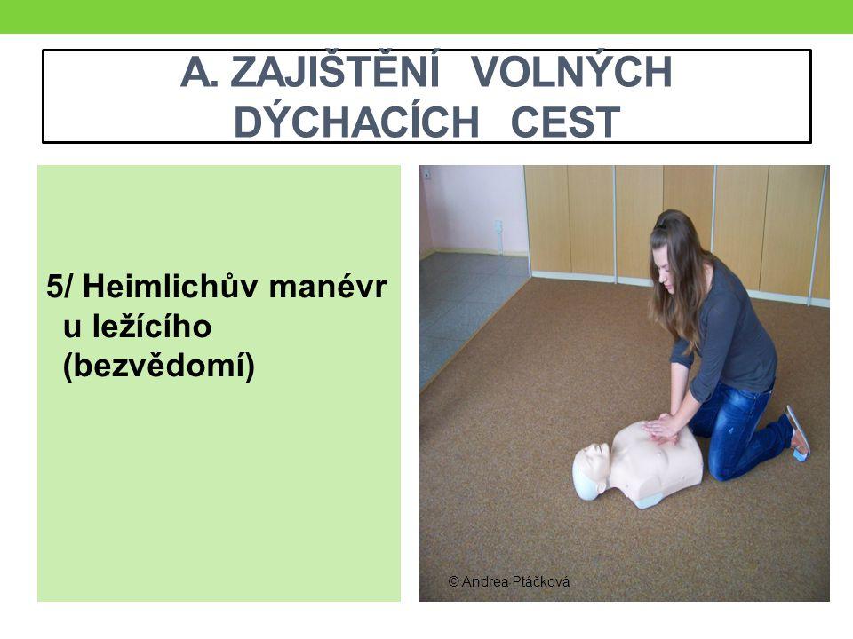 A. ZAJIŠTĚNÍ VOLNÝCH DÝCHACÍCH CEST 5/ Heimlichův manévr u ležícího (bezvědomí) © Andrea Ptáčková
