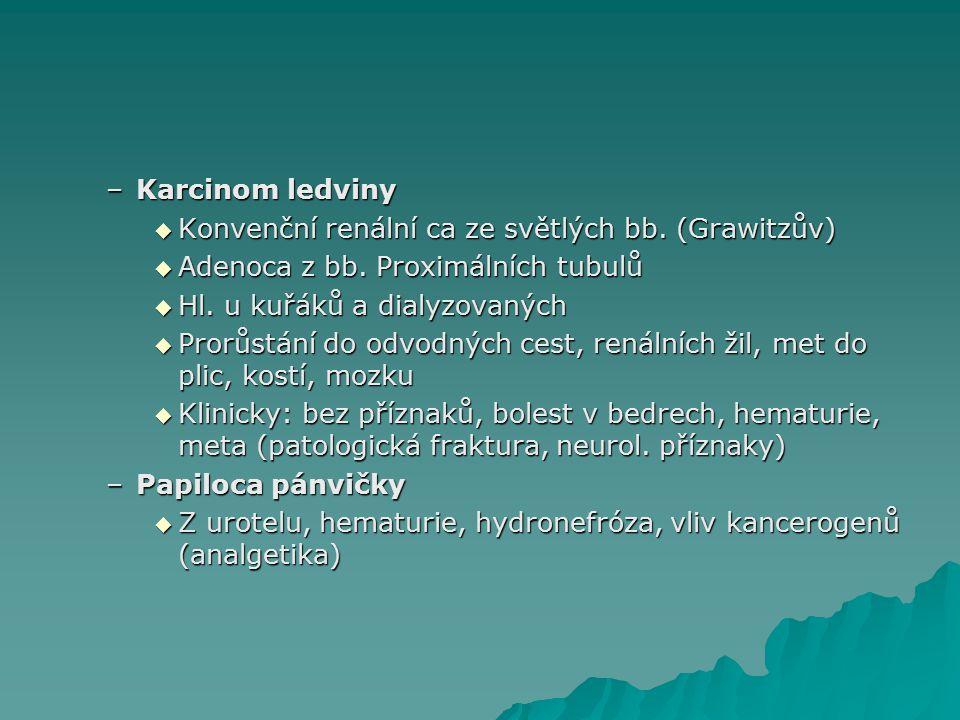 –Karcinom ledviny  Konvenční renální ca ze světlých bb.