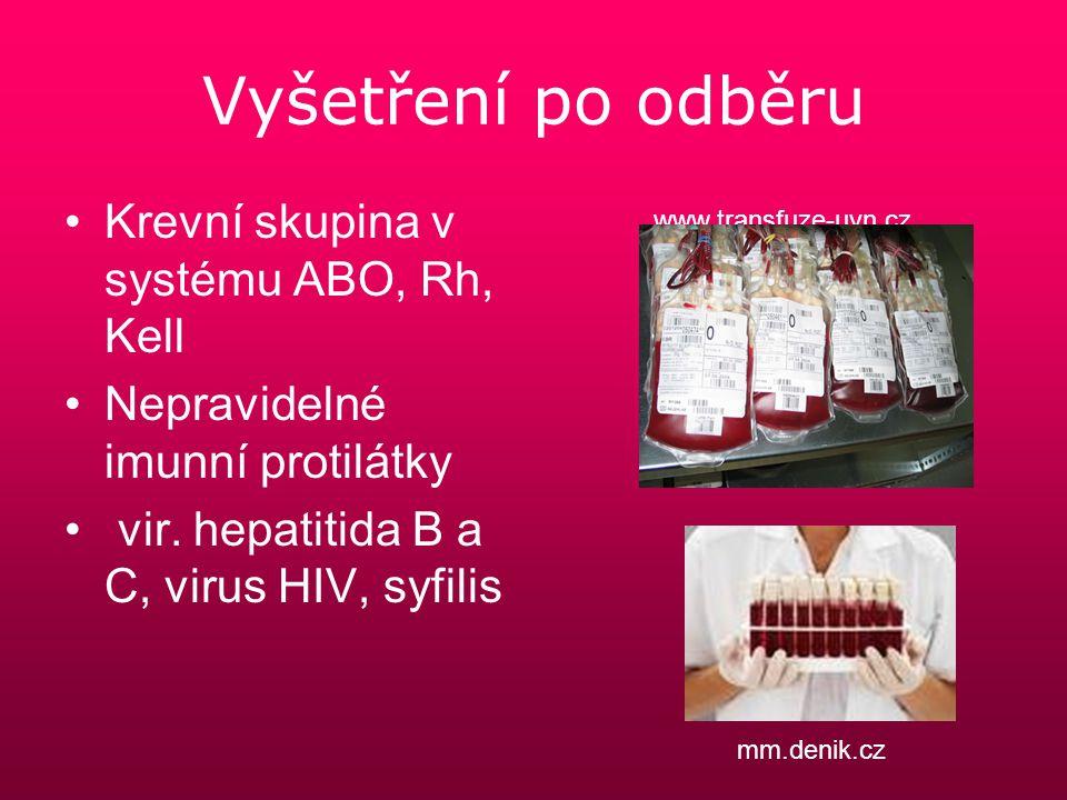 Vyšetření po odběru Krevní skupina v systému ABO, Rh, Kell Nepravidelné imunní protilátky vir. hepatitida B a C, virus HIV, syfilis www.transfuze-uvn.