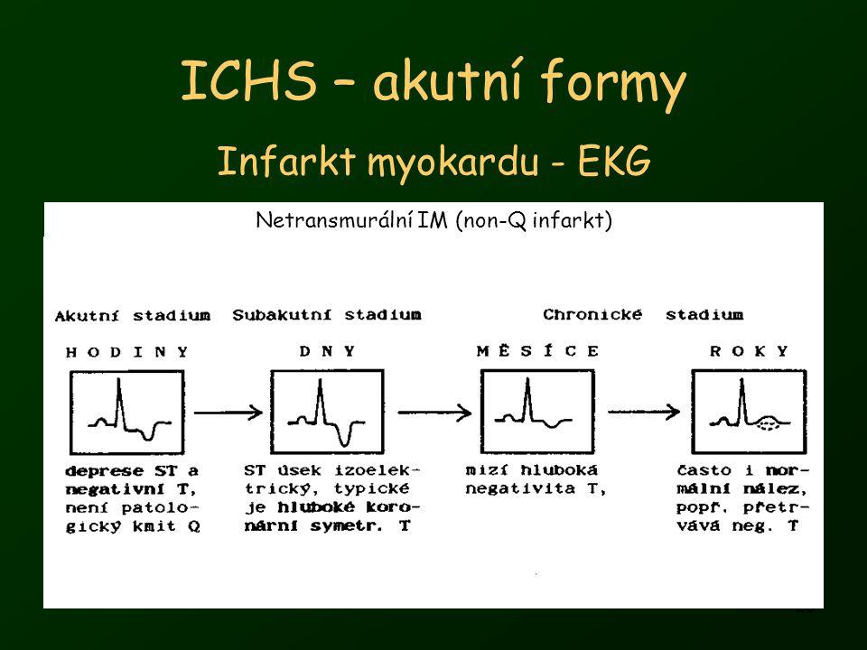 26 ICHS – akutní formy Infarkt myokardu - EKG Netransmurální IM (non-Q infarkt)
