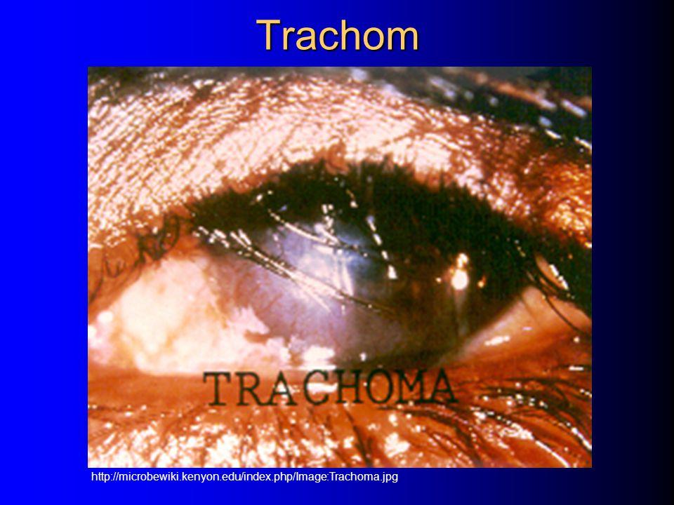 Trachom http://microbewiki.kenyon.edu/index.php/Image:Trachoma.jpg