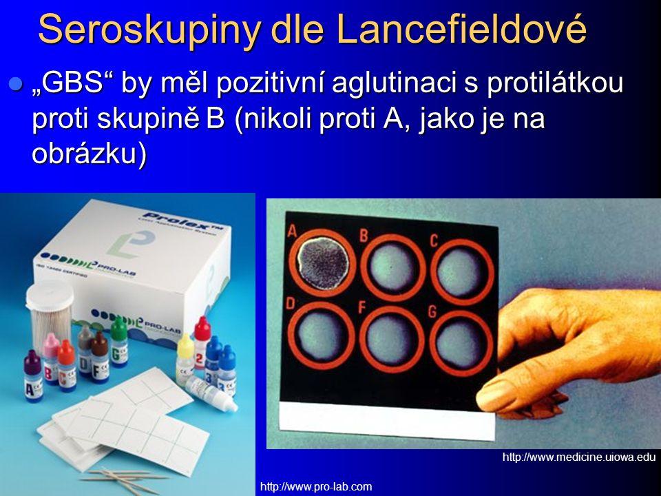 """Seroskupiny dle Lancefieldové """"GBS"""" by měl pozitivní aglutinaci s protilátkou proti skupině B (nikoli proti A, jako je na obrázku) """"GBS"""" by měl poziti"""