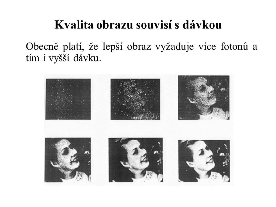 Kvalita obrazu souvisí s dávkou Obecně platí, že lepší obraz vyžaduje více fotonů a tím i vyšší dávku.