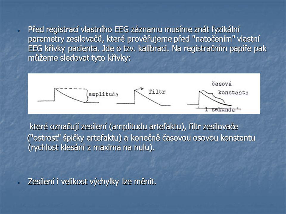 Před registrací vlastního EEG záznamu musíme znát fyzikální parametry zesilovačů, které prověřujeme před