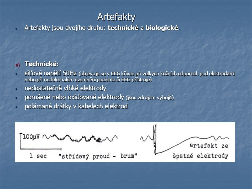Artefakty Artefakty Artefakty jsou dvojího druhu: technické a biologické. Artefakty jsou dvojího druhu: technické a biologické. a) Technické: síťové n