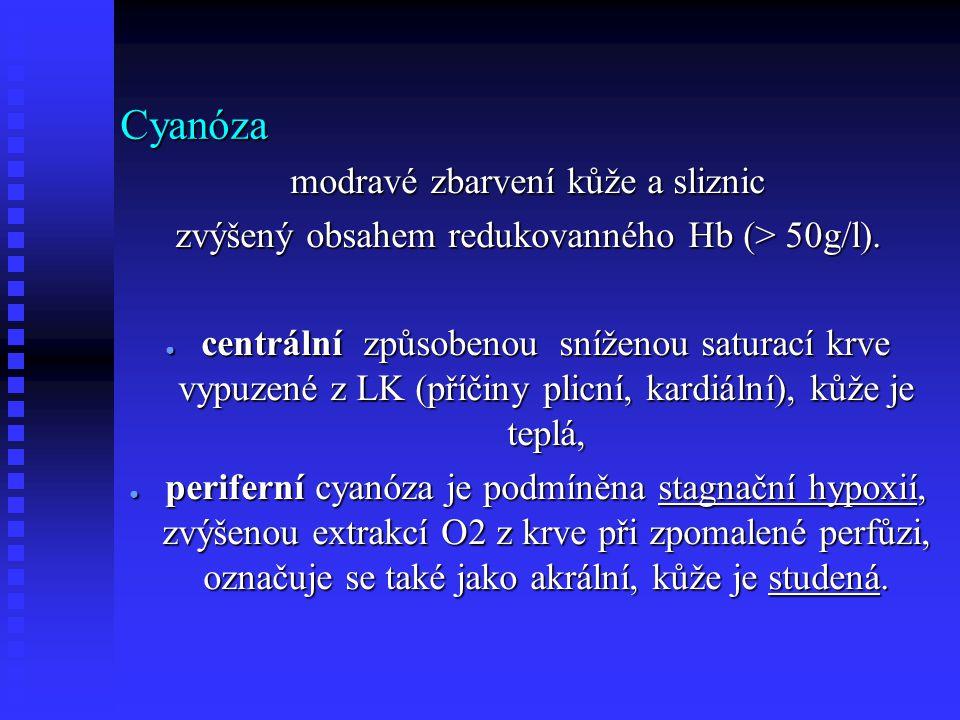 Cyanóza modravé zbarvení kůže a sliznic zvýšený obsahem redukovanného Hb (> 50g/l).