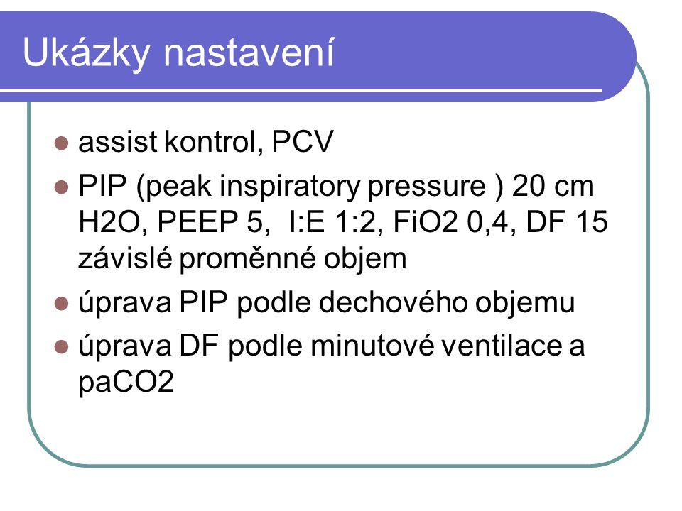 Ukázky nastavení assist kontrol, PCV PIP (peak inspiratory pressure ) 20 cm H2O, PEEP 5, I:E 1:2, FiO2 0,4, DF 15 závislé proměnné objem úprava PIP po