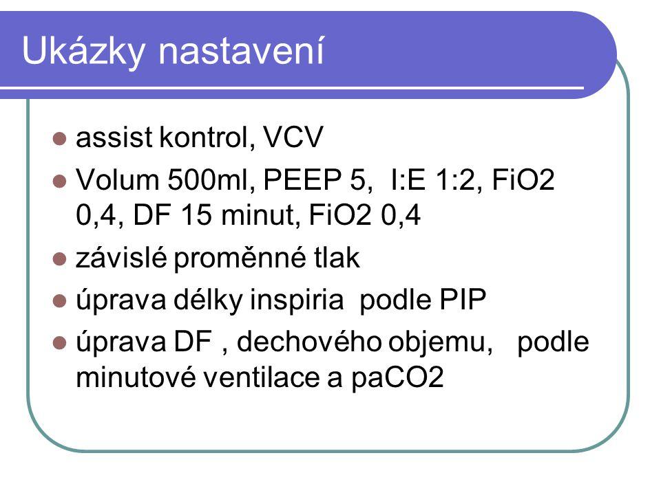 Ukázky nastavení assist kontrol, VCV Volum 500ml, PEEP 5, I:E 1:2, FiO2 0,4, DF 15 minut, FiO2 0,4 závislé proměnné tlak úprava délky inspiria podle P