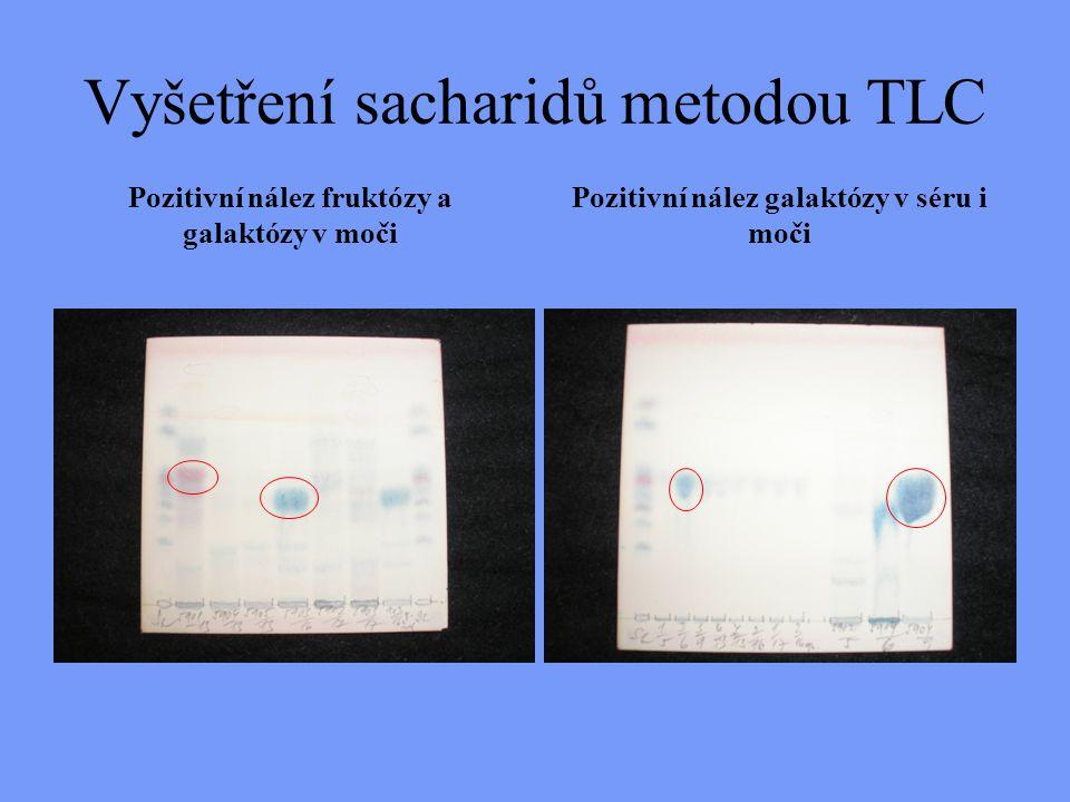 Vyšetření sacharidů metodou TLC Pozitivní nález fruktózy a galaktózy v moči Pozitivní nález galaktózy v séru i moči