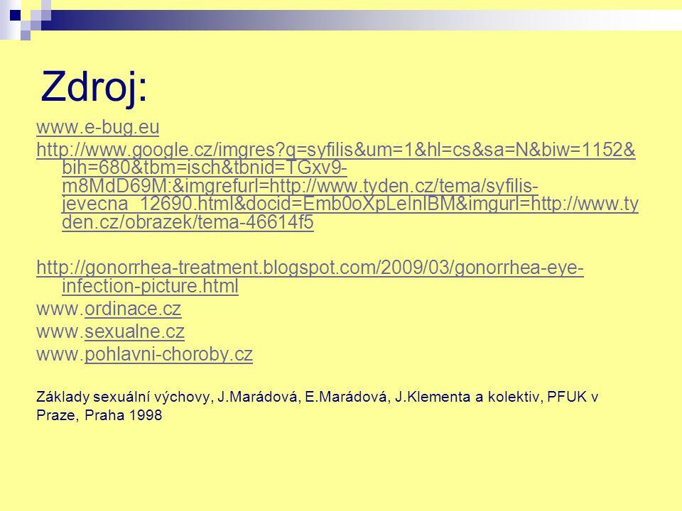 Zdroj: www.e-bug.eu http://www.google.cz/imgres q=syfilis&um=1&hl=cs&sa=N&biw=1152& bih=680&tbm=isch&tbnid=TGxv9- m8MdD69M:&imgrefurl=http://www.tyden.cz/tema/syfilis- jevecna_12690.html&docid=Emb0oXpLeInlBM&imgurl=http://www.ty den.cz/obrazek/tema-46614f5 http://gonorrhea-treatment.blogspot.com/2009/03/gonorrhea-eye- infection-picture.html www.ordinace.czordinace.cz www.sexualne.czsexualne.cz www.pohlavni-choroby.czpohlavni-choroby.cz Základy sexuální výchovy, J.Marádová, E.Marádová, J.Klementa a kolektiv, PFUK v Praze, Praha 1998