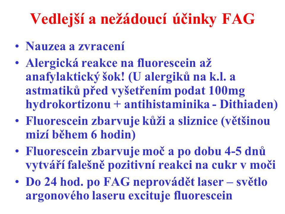 Vedlejší a nežádoucí účinky FAG Nauzea a zvracení Alergická reakce na fluorescein až anafylaktický šok! (U alergiků na k.l. a astmatiků před vyšetření