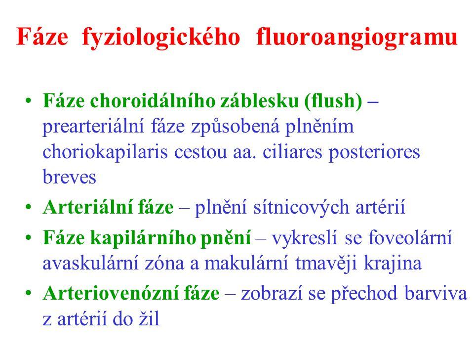 Fáze fyziologického fluoroangiogramu Fáze choroidálního záblesku (flush) – prearteriální fáze způsobená plněním choriokapilaris cestou aa. ciliares po