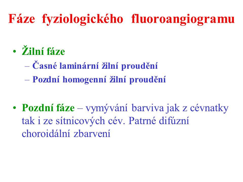 Fáze fyziologického fluoroangiogramu Žilní fáze –Časné laminární žilní proudění –Pozdní homogenní žilní proudění Pozdní fáze – vymývání barviva jak z