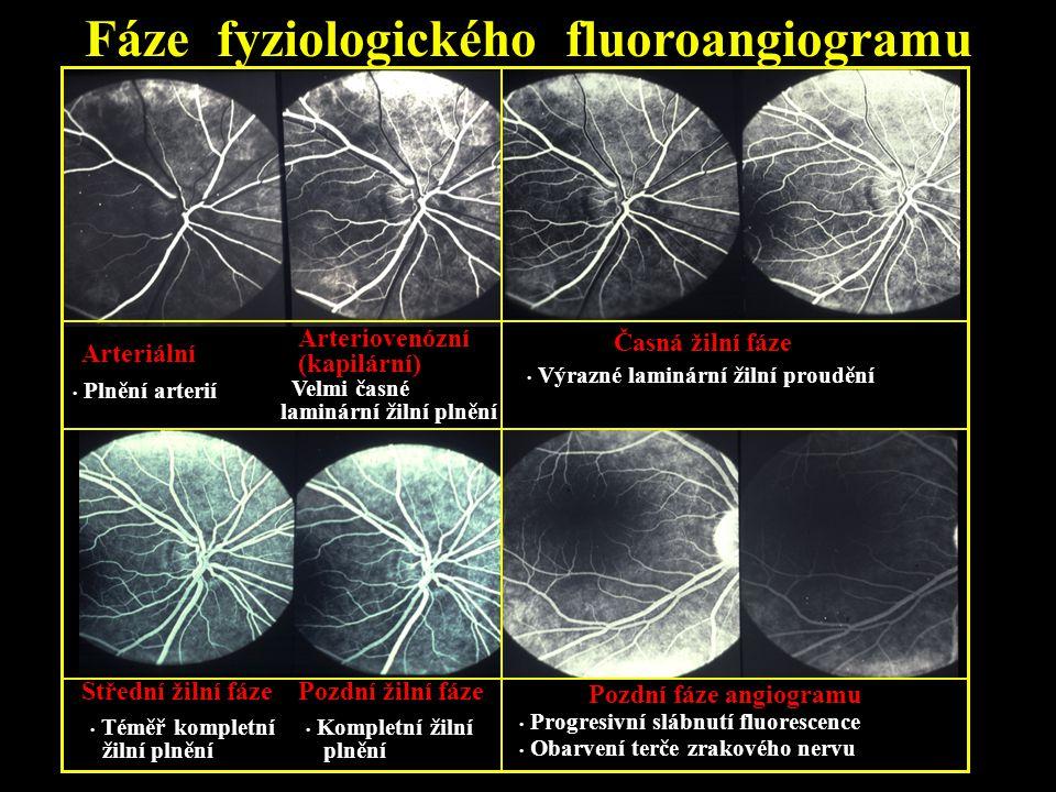 Fáze fyziologického fluoroangiogramu Arteriální Plnění arterií Arteriovenózní (kapilární) Velmi časné laminární žilní plnění Časná žilní fáze Výrazné
