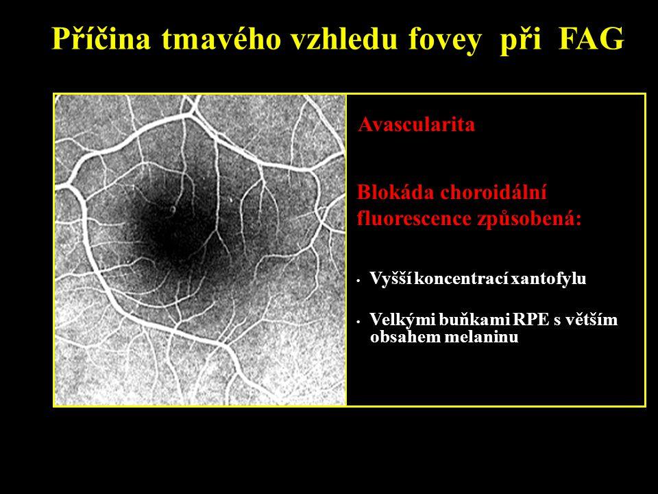 Příčina tmavého vzhledu fovey při FAG Avascularita Vyšší koncentrací xantofylu Velkými buňkami RPE s větším obsahem melaninu Blokáda choroidální fluor