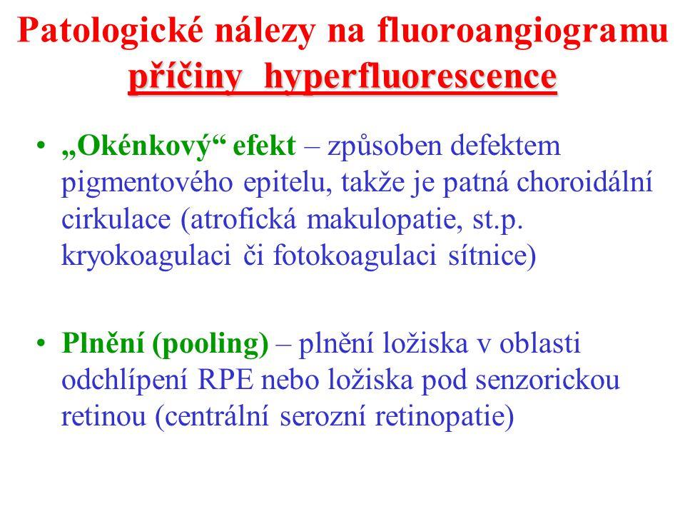 """příčiny hyperfluorescence Patologické nálezy na fluoroangiogramu příčiny hyperfluorescence """"Okénkový"""" efekt – způsoben defektem pigmentového epitelu,"""