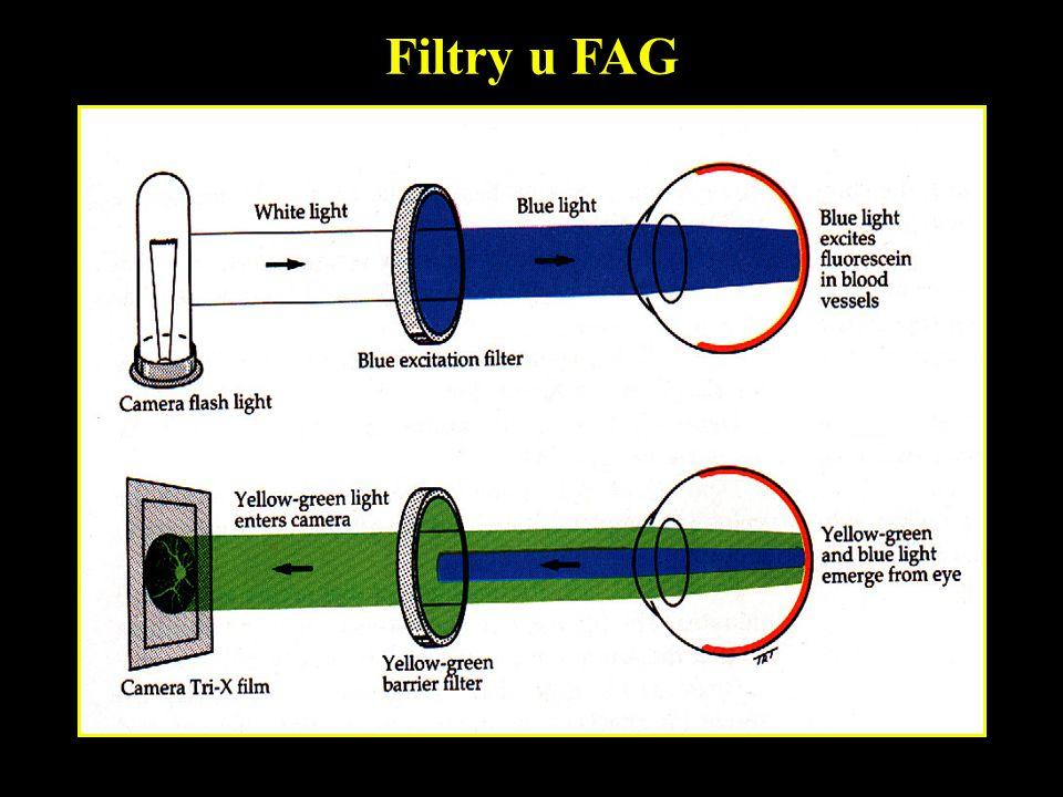 Filtry u FAG
