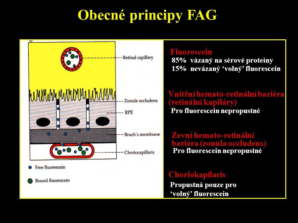 Obecné principy FAG Fluorescein 85% vázaný na sérové proteiny 15% nevázaný 'volný' fluorescein Pro fluorescein nepropustné Zevní hemato-retinální bari