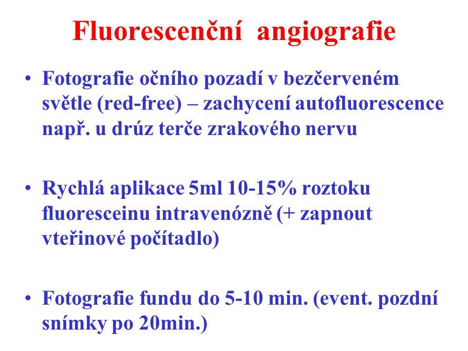 Fluorescenční angiografie Fotografie očního pozadí v bezčerveném světle (red-free) – zachycení autofluorescence např. u drúz terče zrakového nervu Ryc