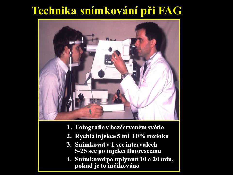 Technika snímkování při FAG 1. Fotografie v bezčerveném světle 2. Rychlá injekce 5 ml 10% roztoku 3. Snímkovat v 1 sec intervalech 5-25 sec po injekci
