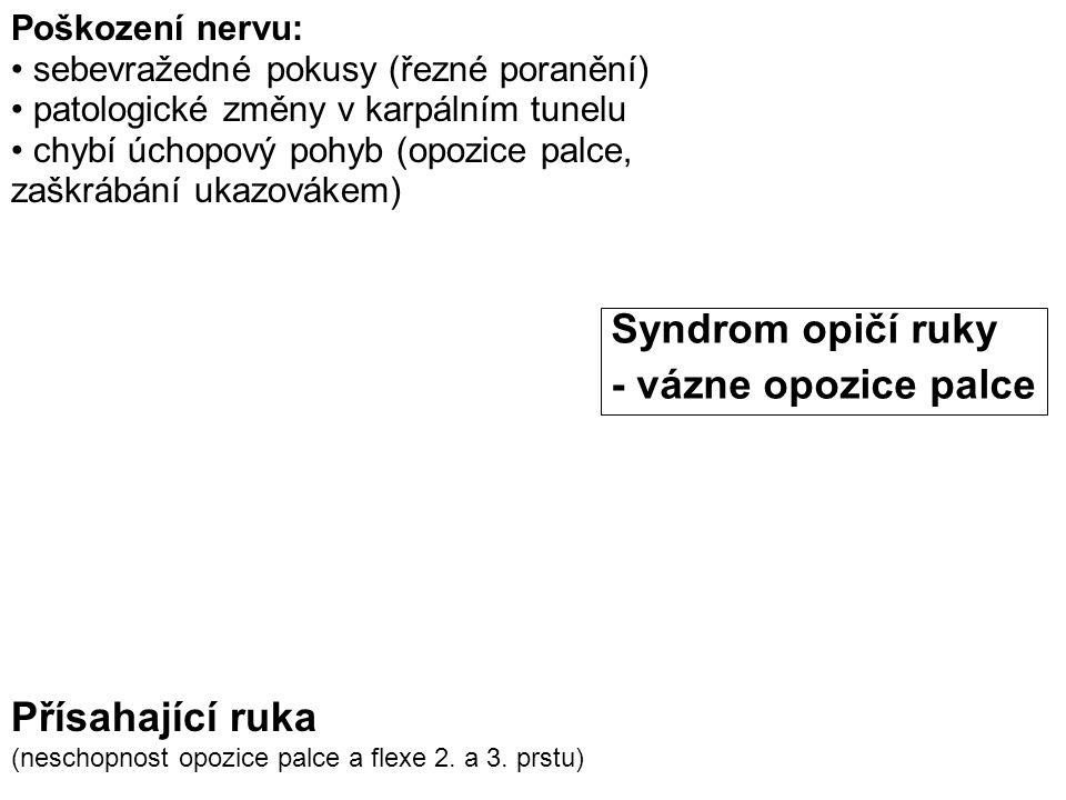 Přísahající ruka (neschopnost opozice palce a flexe 2. a 3. prstu) Syndrom opičí ruky - vázne opozice palce Poškození nervu: sebevražedné pokusy (řezn
