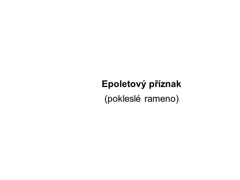 Epoletový příznak (pokleslé rameno)