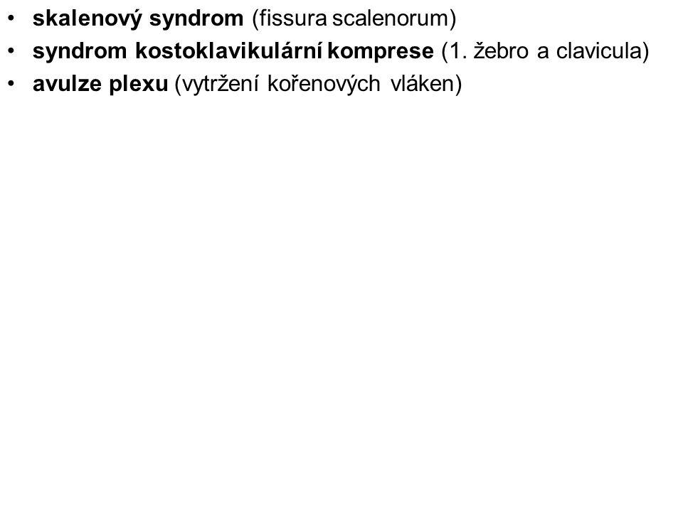 skalenový syndrom (fissura scalenorum) syndrom kostoklavikulární komprese (1. žebro a clavicula) avulze plexu (vytržení kořenových vláken)
