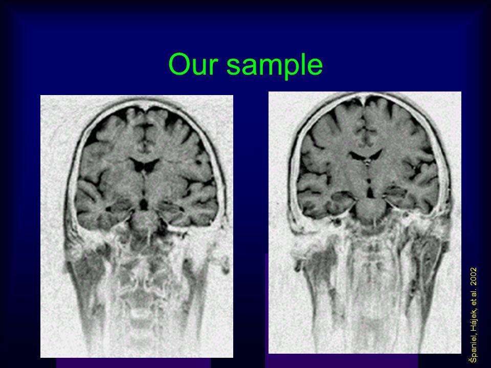Our sample Španiel, Hájek, et al. 2002