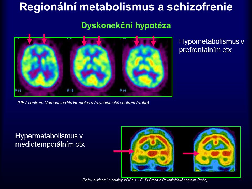 Regionální metabolismus a schizofrenie Dyskonekční hypotéza Hypometabolismus v prefrontálním ctx Hypermetabolismus v mediotemporálním ctx (PET centrum