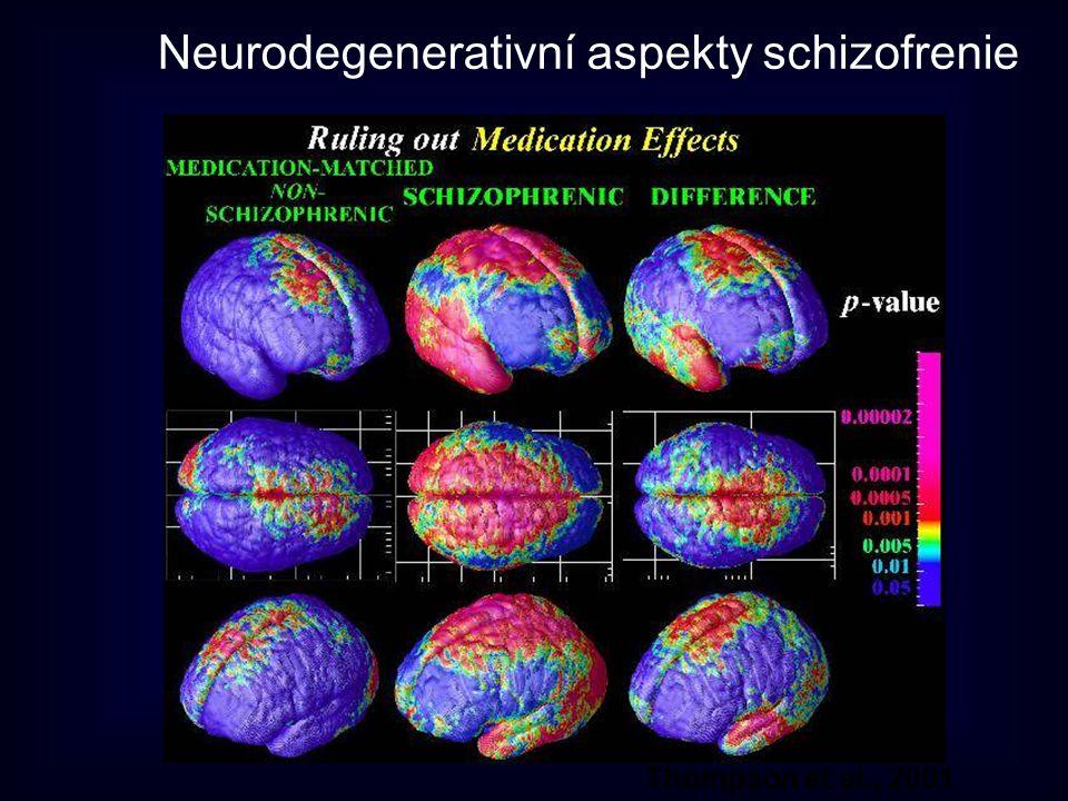Thompson et al., 2001 Neurodegenerativní aspekty schizofrenie